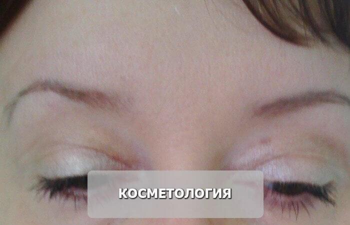 косметология_после