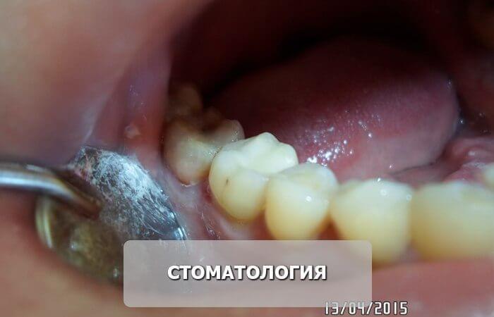 стоматология_после