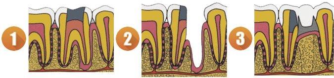 короно-радикулярная сепарация зуба