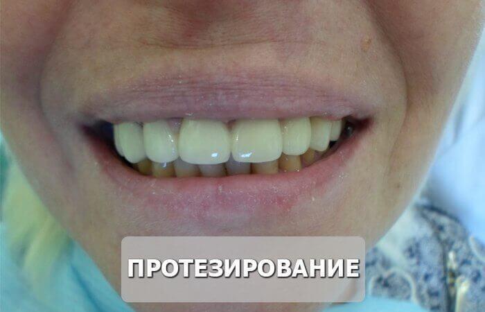 протезирование_после