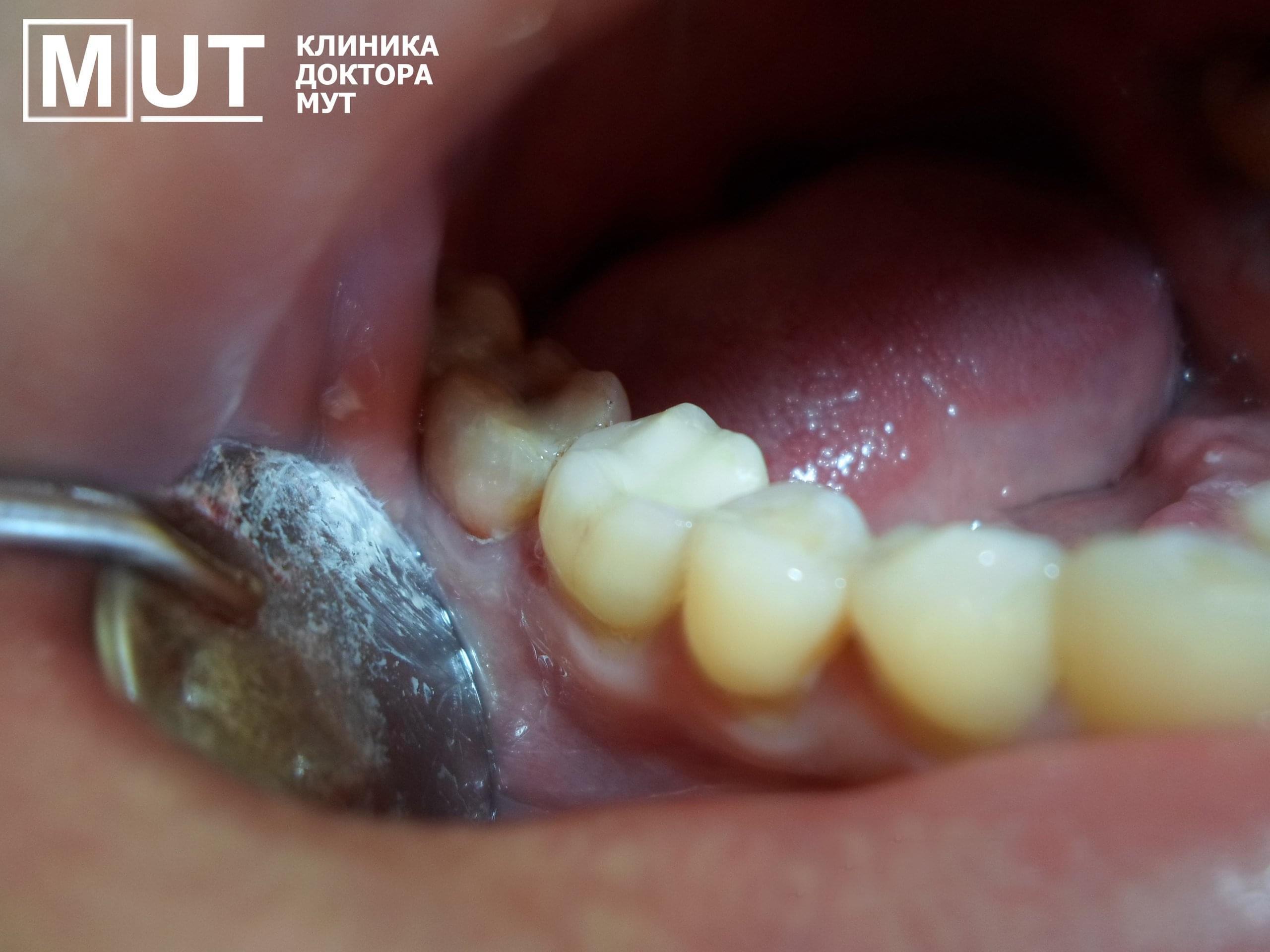 лечение зубов в самаре