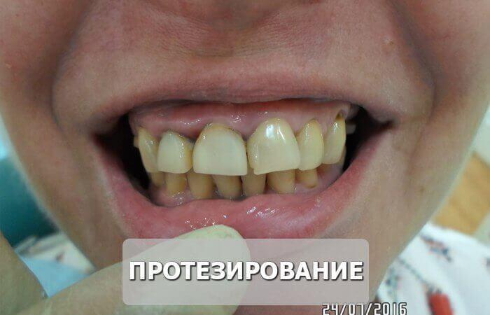 протезирование_до