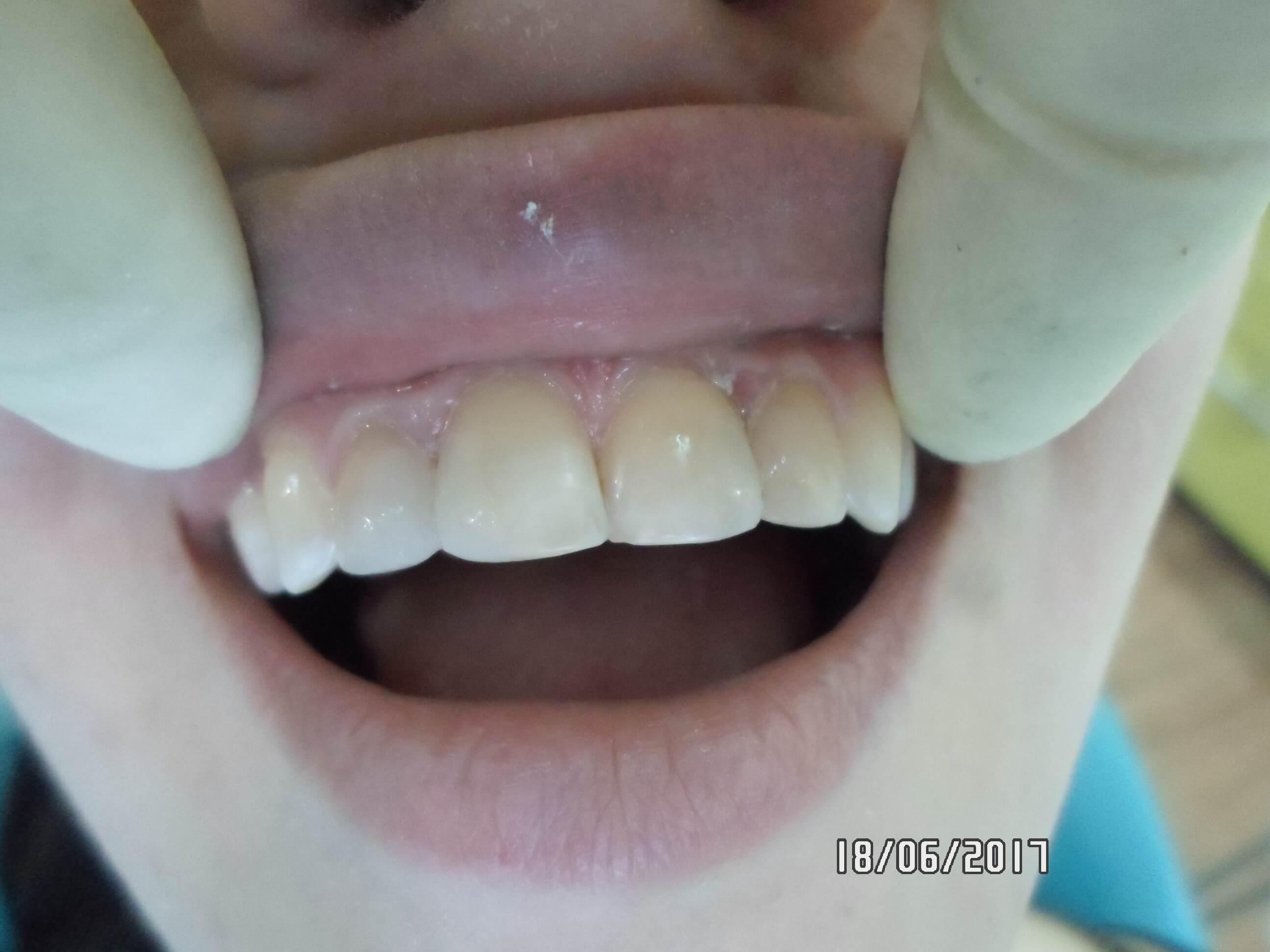 Реставрация зубов в Самаре