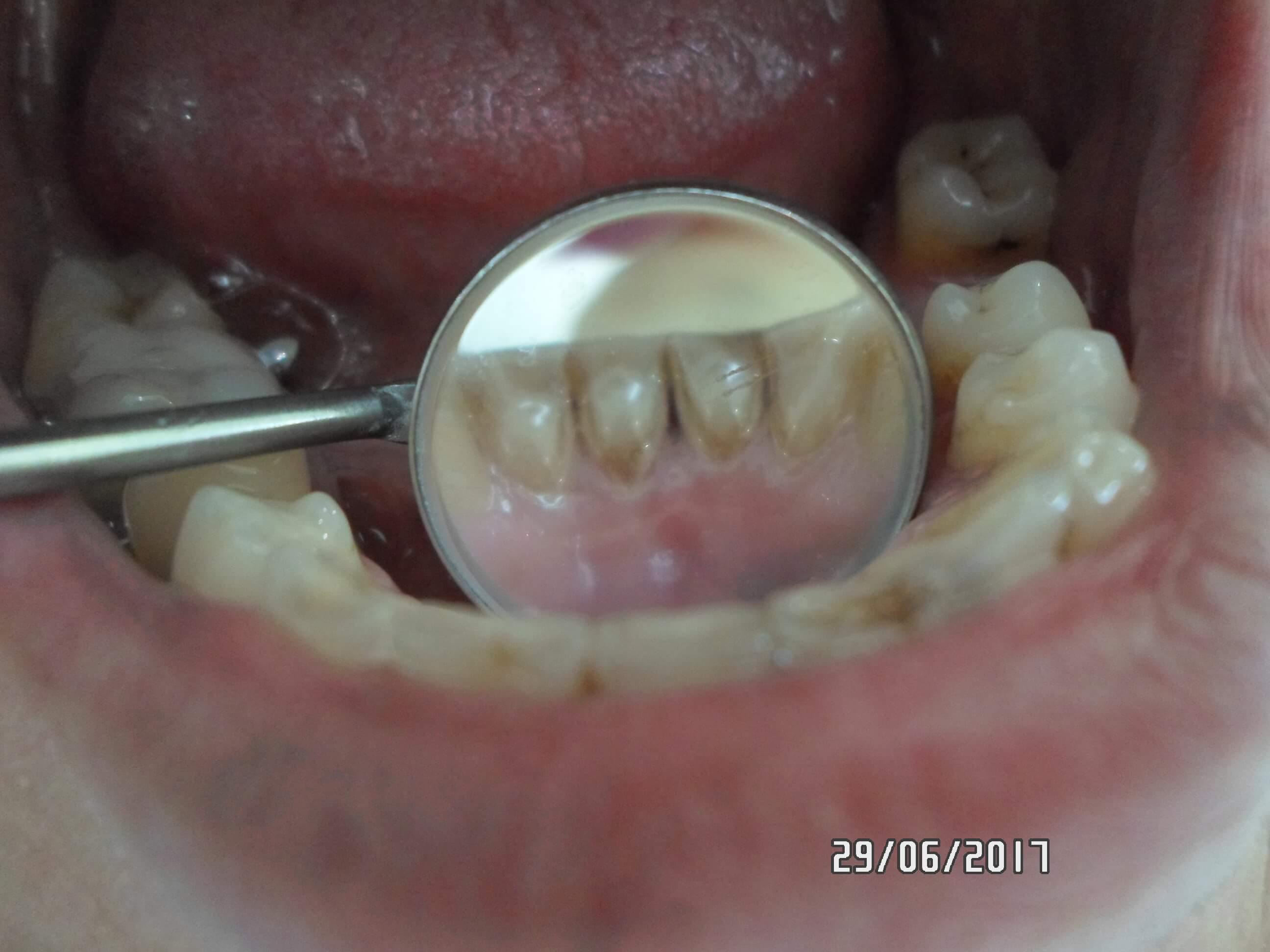 Профессиональная чистка зубов в Самаре Клиника Доктора Мут